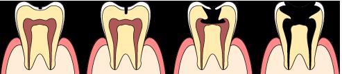 虫歯の進行 参考画像